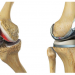 Total Knee Replacement Puerto Vallarta